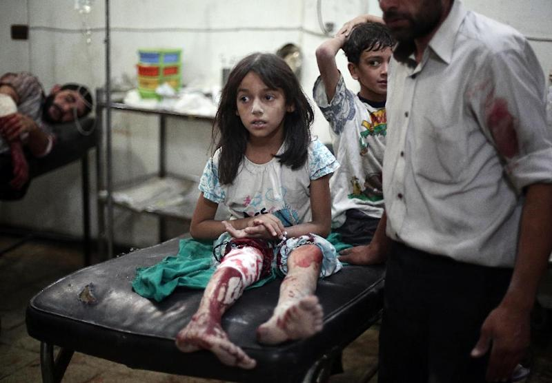 A wounded Syrian girl sits on a hospital bed at a makeshift hospital in the rebel-held town of Douma near Damascus, on September 3, 2014