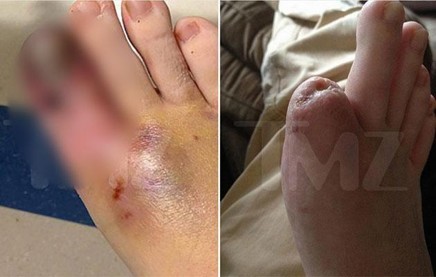 The photo of Christina's injured toe obtained by TMZ. Source: TMZ