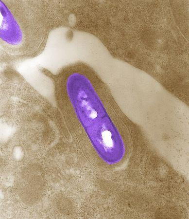 An electron micrograph of a Listeria bacterium in tissue is seen in a 2002 image from the Centers for Disease Control and Prevention (CDC). REUTERS/Elizabeth White/CDC/Handout via Reuters