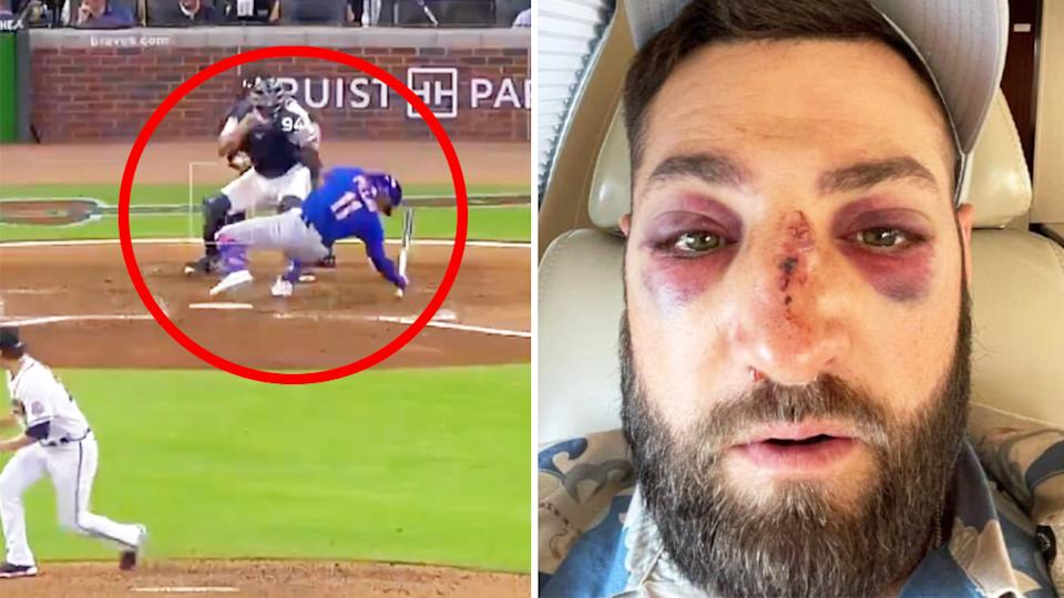 Kevin Pillar (pictured right) with injuries after he was hit in the face (pictured left) by a fastball.