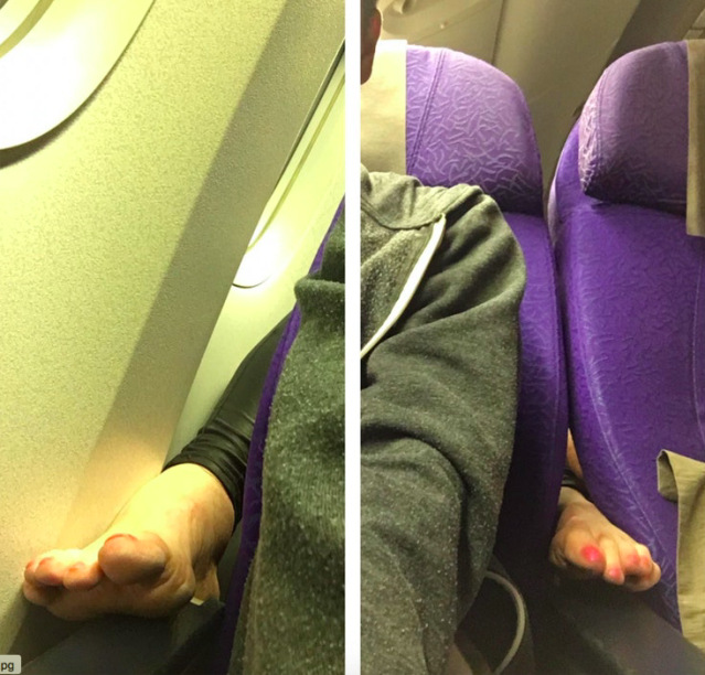 The offending feet. (Photo: Reddit/craftiest)
