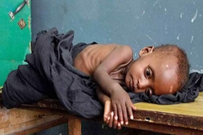 Malnutrition fell at the rate of 1% per year over the past decade, the slowest decline amongst emerging economies. (Representational Image)