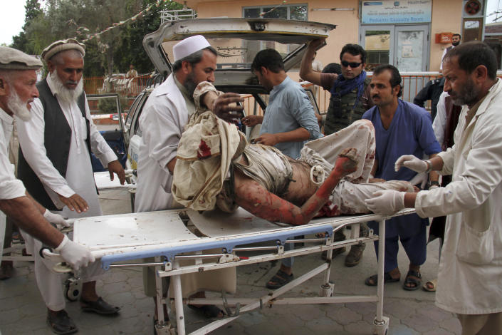 """FILE - In this Oct. 18, 2019 file photo, a wounded man is brought by stretcher into a hospital after a mortar was fired by insurgents in Jalalabad, Afghanistan. After 20 years America is ending its """"forever"""" war in Afghanistan. There's conflicting views even among U. S. military minds as to whether the time is right. For others there is another lingering question: Was it worth it? (AP Photo/Wali Sabawoon, File)"""