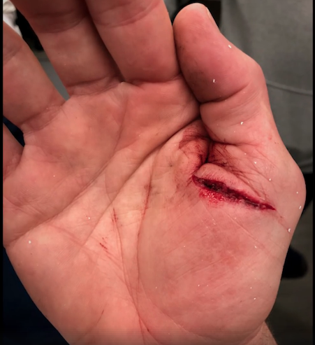 "Tom Brady took this photo of his right hand after the injury he suffered in practice during the playoffs, as seen in ""Tom vs. Time"". (Screencap)"