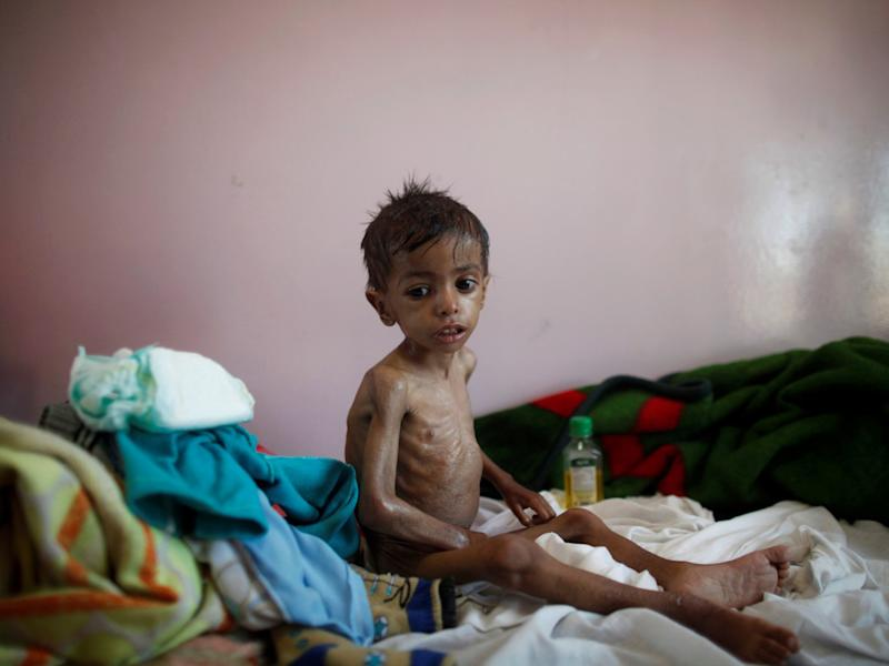 More than 370,000 children are at risk of starvation in Yemen alone: Reuters