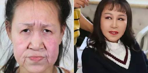 chinese girl gets plastic surgery