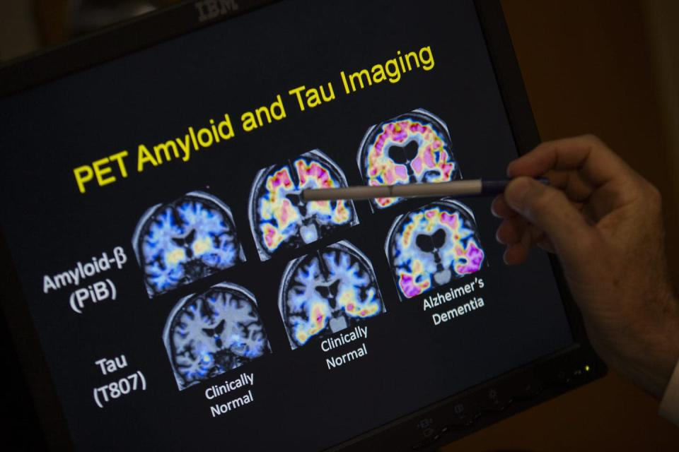 PET scan of brain images