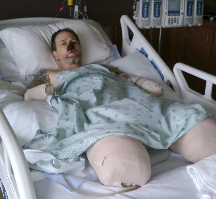 Surgeons have had to amputate his legs and hands after he contracted a rare blood infection from a dog lick. Source: AP