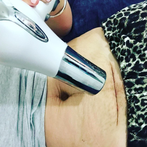 A parenting blogger has shared an image of her caesarean scar to prove it isn't the easy way out [Photo: Instagram/themodernmumma]