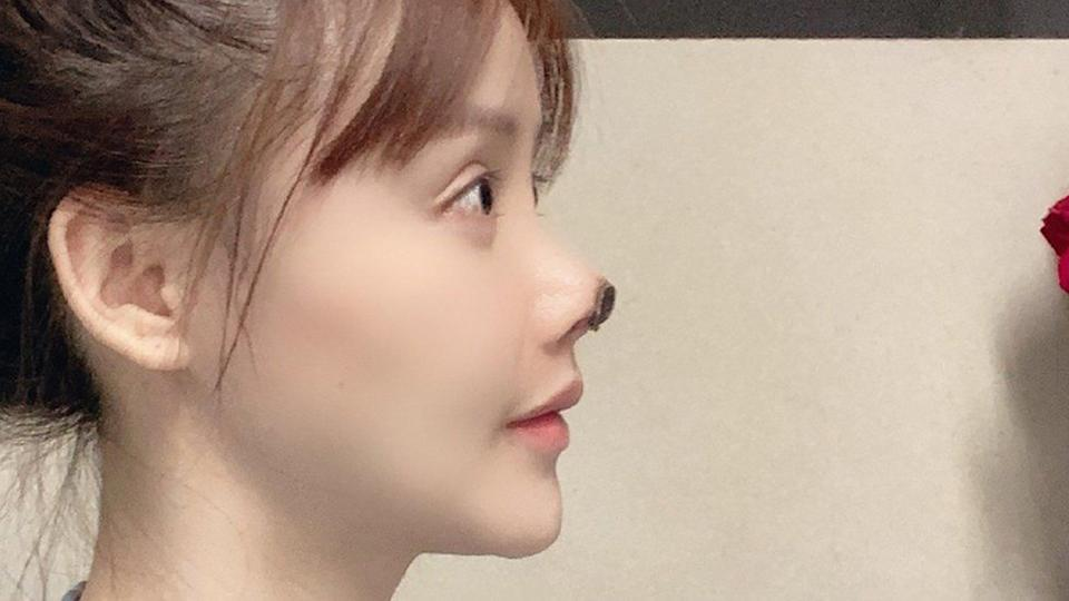 Actress Gao Liu posted candid pictures of her post-surgery face on Weibo which showed a part of her nose blackened with dead flesh after horror plastic surgery. Photo:Weibo