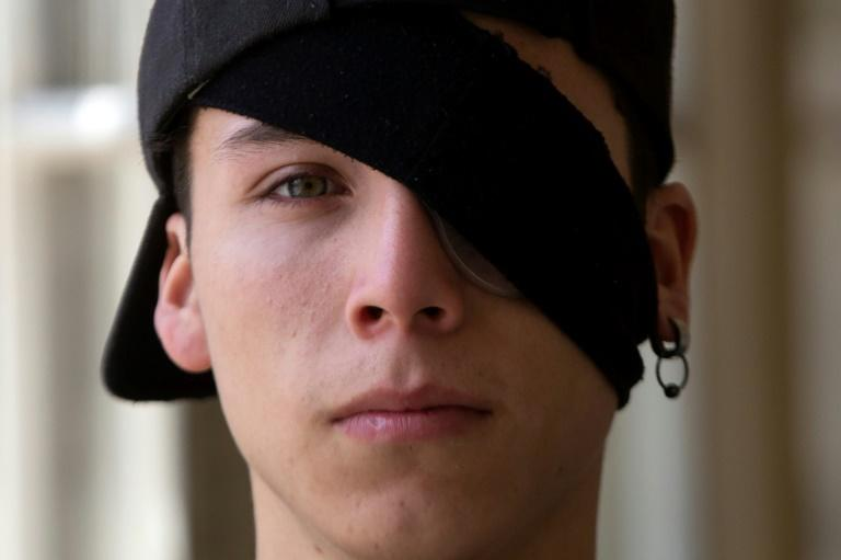 Student Carlos Vivanco lost the sight in his left eye during protests in Chile (AFP Photo/CLAUDIO REYES)