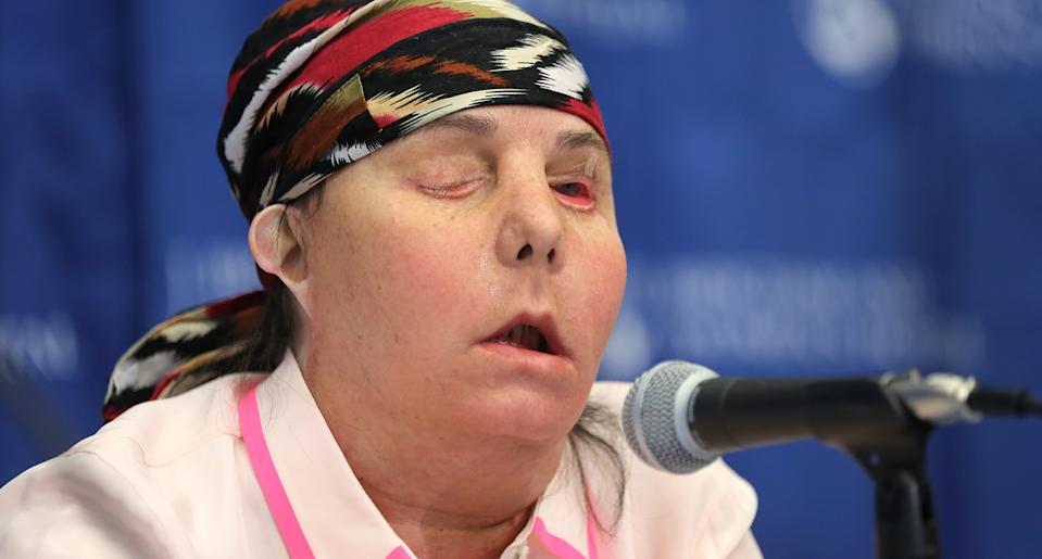 Carmen Blandin Tarleton, who received a face transplant at Brigham and Women's Hospital in 2013, is facing a possible second transplant as her body rejects the tissue. (Photo: Getty Images)