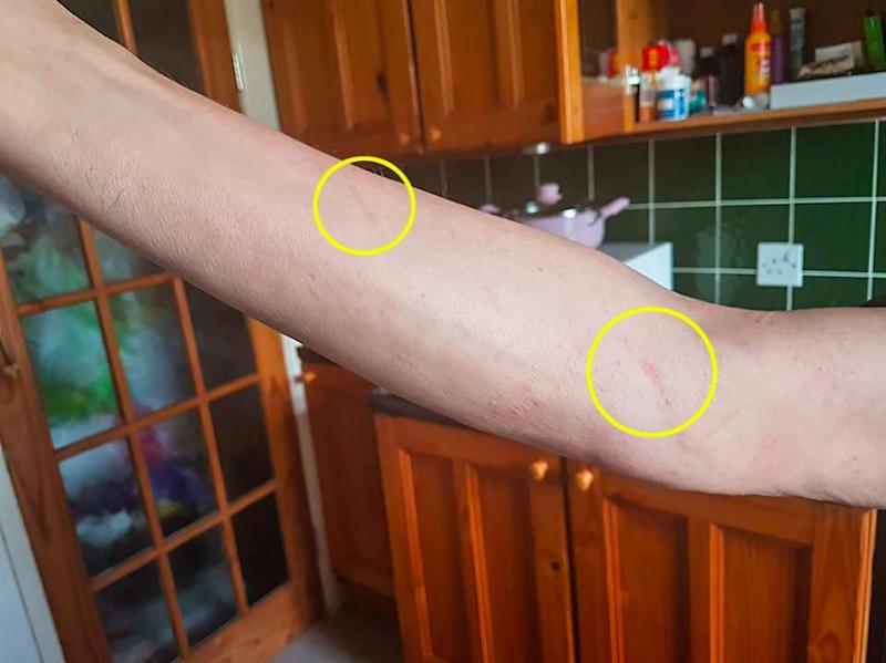 Lee's dad woke up with small scratches along his arm. Photo: Caters