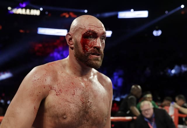 Tyson Fury was badly cut during his contest against Otto Wallin