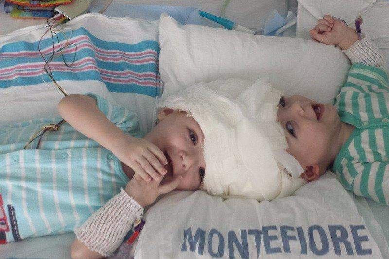 Mom: 'Uncertainty' after surgery on twins joined at head