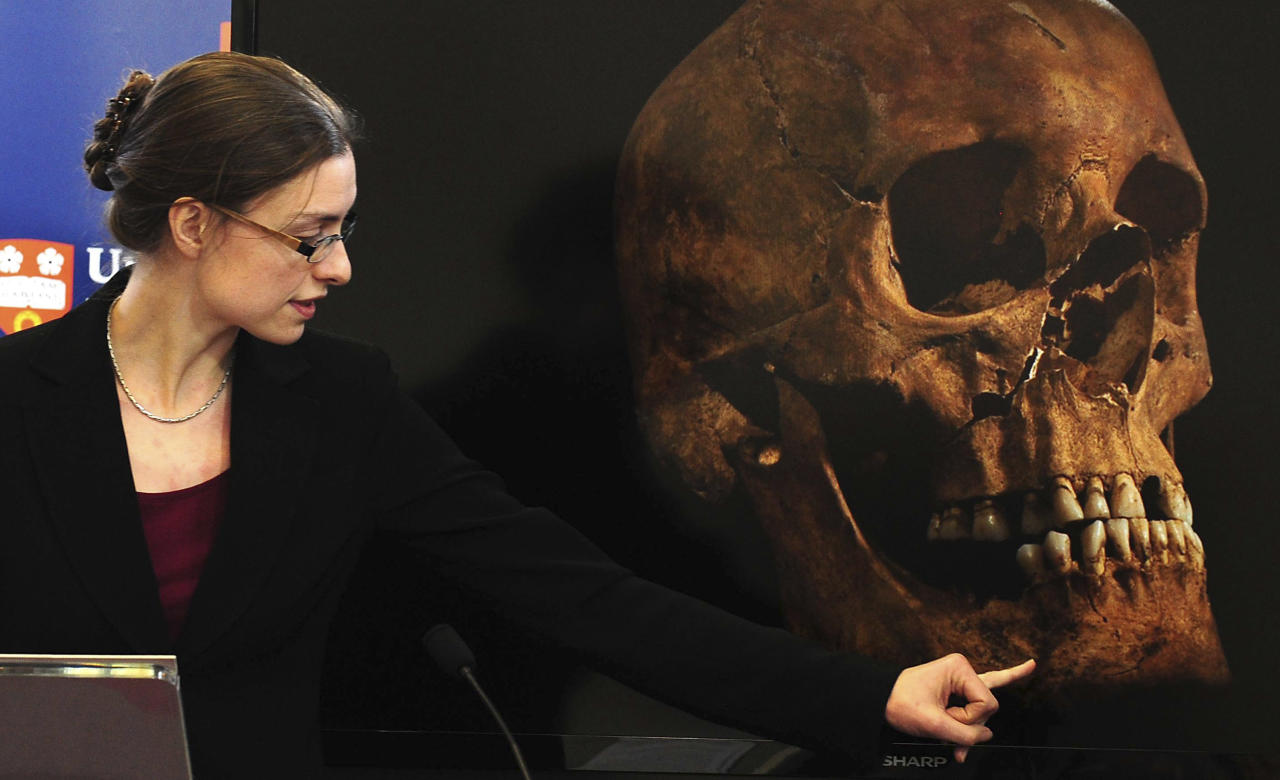 "Jo Appleby, a lecturer in Human Bioarchaeology, at University of Leicester, School of Archaeology and Ancient History, who led the exhumation of the remains found during a dig at a Leicester car park, speaks at the university Monday Feb. 4, 2013. Tests have established that a skeleton found , including this skull, are ""beyond reasonable doubt"" the long lost remains of England's King Richard III, missing for 500 years.(AP Photo/Rui Vieira, PA) UNITED KINGDOM OUT - NO SALES - NO ARCHIVES"