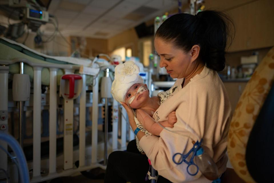 Liliya Miroshnik is grateful for the surgical team that separated her 9-month-old twin girls.