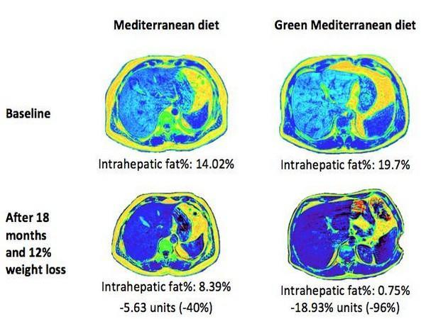 MRI photos illustrate the green MED diet effect on hepatic fat loss. (Image: Gut 2021)