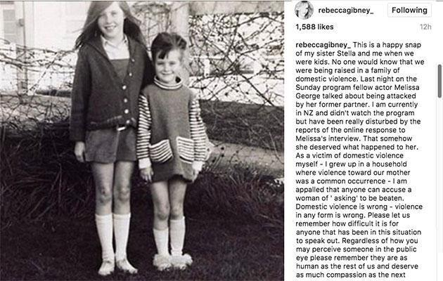 Rebecca posted this photo of herself and her sister as children. Photo: Instagram
