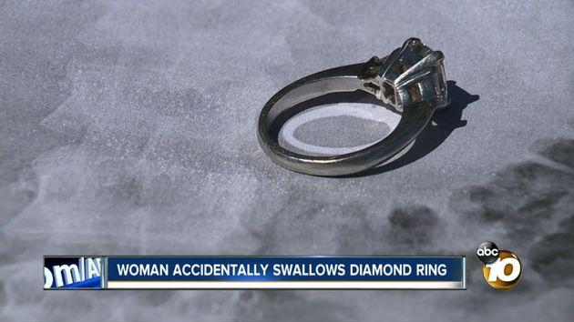 This diamond engagement ring was removed from a California woman's stomach last week after she said she swallowed it while sleepwalking.