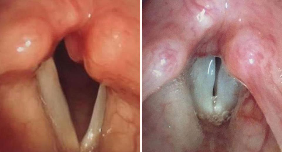 Before and after photos of Kaitlyn Grace's swollen vocal cords after her injections from a Queensland specialist doctor.