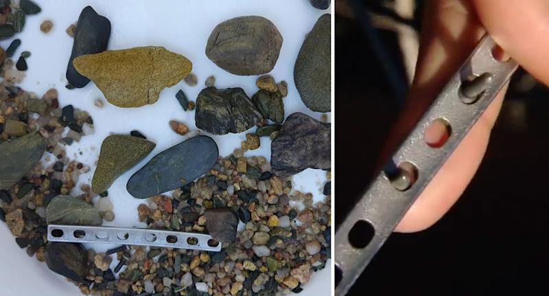 Photos showing the orthopaedic metal plate found inside a 60-year-old crocodile's stomach.