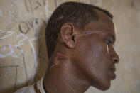 Abrahaley Minasbo a 22-year-old trained dancer and Tigrayan survivor from Mai-Kadra, Ethiopia, shows wounds on his face inside a shelter, in the Hamdeyat Transition Center near the Sudan-Ethiopia border, eastern Sudan, Tuesday, Dec. 15, 2020. Minasbo said Amhara militia members dragged him from his home in Mai-Kadra on Nov. 9 and beat him in the street with a hammer, an axe, sticks and a machete, then left him for dead. Scars now slope across the right side of his face and neck. (AP Photo/Nariman El-Mofty)