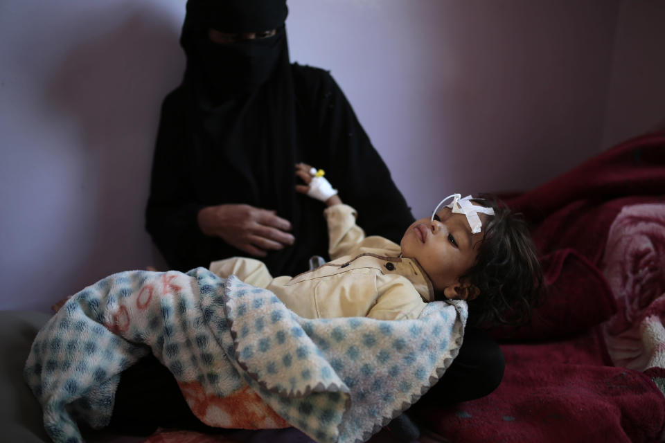 A woman holds her a malnourished boy at a feeding center at Al-Sabeen hospital in Sanaa, Yemen, Tuesday. Nov. 3, 2020. Two-thirds of Yemen's population of about 28 million people are hungry, and nearly 1.5 million families currently rely entirely on food aid to survive, with another million people are set to fall into crisis levels of hunger before the year end, according to aid agencies working in Yemen. (AP Photo/Hani Mohammed)