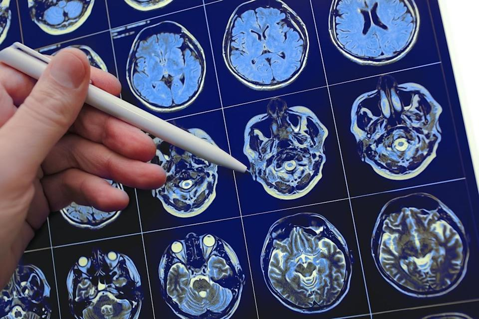 Medical doctor pointing with pen to the brain poblem on the MRI study result