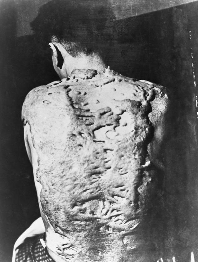 <p>Keloids cover the back of a survivor of the Nagasaki atomic bomb. Keloids are dense, fibrous growths that grow over scar tissue. (Photo: Corbis via Getty Images) </p>