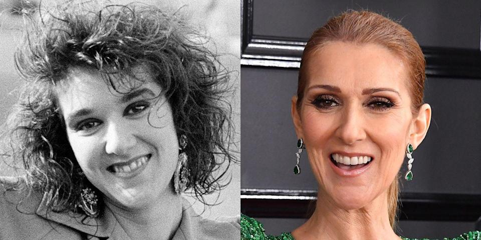 "<p>""Celine had crowded and discolored teeth. Her smile appears to have been improved with the use of porcelain veneers to create a straighter, whiter, and wider smile that enhances her facial features.""</p>"