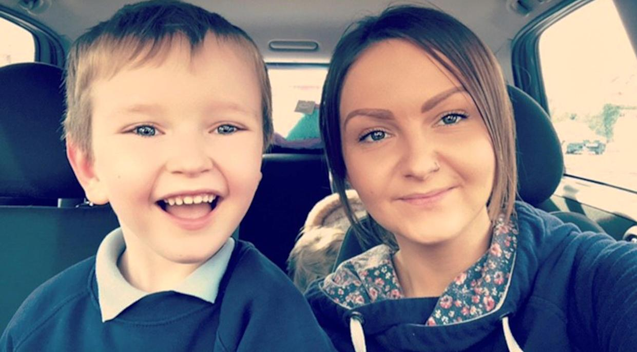 "Tommy's mother Abigail McDonald calls his condition ""horrific"". [Photo: Caters]"