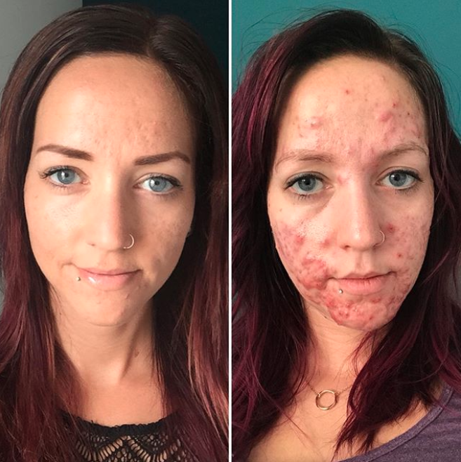 A woman has shared the horrific effects of her cystic acne. Photo: Instagram/stephmkt1d