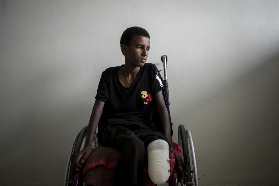Mikiele Kahsay, 16, sits in a wheelchair at the Ayder Referral Hospital in Mekele, in the Tigray region of northern Ethiopia, on Thursday, May 6, 2021. The teenager was wounded when a shell landed near him as he was kicking a ball at a school field in Bizet. His leg had to be amputated because he was unable to get to hospital for four days, and gangrene set in. (AP Photo/Ben Curtis)