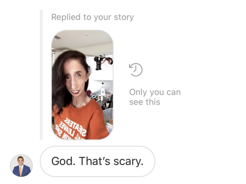 Lizzie Velasquez re-posts reporter's rude comment to her feed to shed light on cyberbullying. (Photo: Instagram)