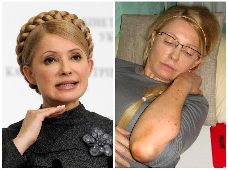 This combination of two photos shows on the left, in a Dec. 29, 2009 file photo, then Ukrainian Prime Minister Yulia Tymoshenko speaking to the media in Kiev, Ukraine, and on the right, in a photo provided by Ukrainian Pravda, taken Wednesday, April 25, 2012, Tymoshenko shows bruises on her body to the Ukrainian Commissioner for Human Rights in Kachanovskaya prison in Kharkiv, Ukraine, which she said she sustained when prison guards attacked her on Friday April 20 when trying to transport her to a local hospital against her will. (AP Photos)