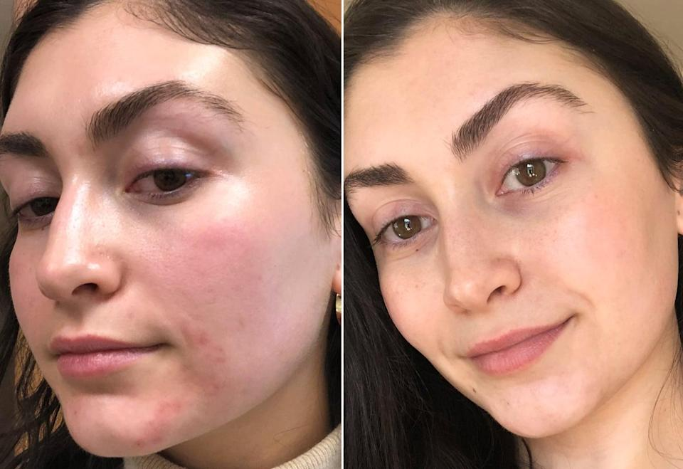"<h2>My Experience With the Acne Mark Treatment</h2> <p>The V-Beam procedure itself is fast - I was done in ten minutes. After the laser warmed up, Dr. Zeichner made sure my skin was free of makeup and dirt before instructing me to put on protective eyeglasses (just to block the light beam). Pain is subjective, but the treatment on my face felt like a light flick on the skin - nothing too bad. </p> <p>Afterward, I was left with redness around the area but it went away in a few hours. There's no downtime or discomfort that lingers, although Dr. Zeichner explained that some people may experience slight bruising or swelling. </p> <p>""In some cases, blood vessels are eliminated immediately, while in others it may take a few weeks for the body to get rid of the damaged blood vessels,"" said Dr. Zeichner. I required only one treatment but particularly stubborn red marks occasionally require a follow-up session.</p> <h2>How Much Is the V-Beam Treatment?</h2> <p>Like most lasers, the V-Beam treatment is considered an elective cosmetic procedure. It costs around $500, depending on the size of the area. It isn't cheap, but considering most people see results after just one treatment, you're definitely getting your money's worth. If you also take into consideration how much money is spent on beauty products and facials to try to lighten acne marks, it ends up being worth it in my book.</p>"