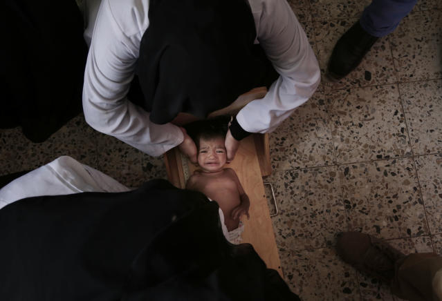 <p>Galila, a 9-month old Yemeni child who suffers from malnutrition, is weighed at the Stabilization Nutritional Therapeutic center in al-Khoukha, a town on Yemen's Red Sea coast, in this Feb. 12, 2018 photo. The baby girl, who started wasting away after catching malaria, weighed 4.5 kilograms (9.9 pounds), compared to the average of 6 to 8 kilograms (13-17 pounds) for a girl her age. (Photo: Nariman El-Mofty/AP) </p>