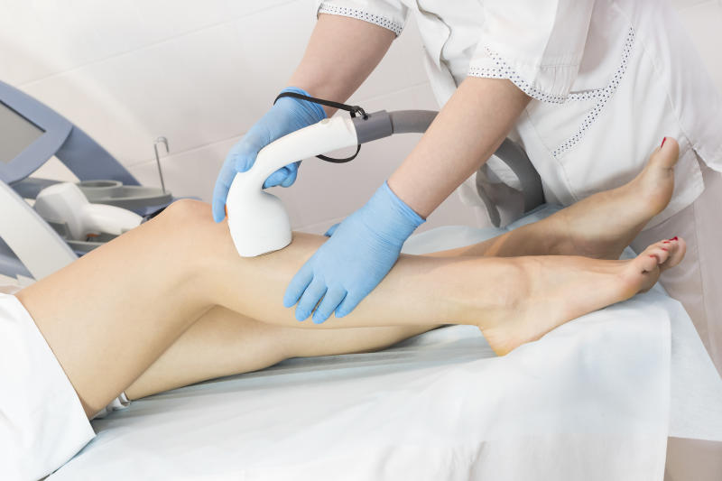 The process of laser depilation of female limbs in the beauty salon.