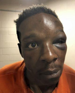 A September 12, 2020, photo provided by The Cochran Firm representing Roderick Walker shows him at Clayton County Jail in Jonesboro, Georgia, with a visible injury to his left eye. / Credit: Handout via Roderick Walker's Lawyers