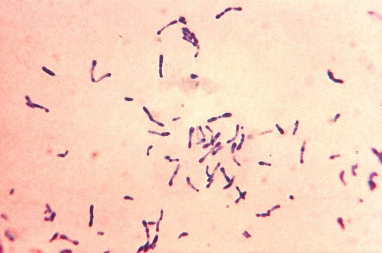 A pink microscope slide with purple bacterial cells.