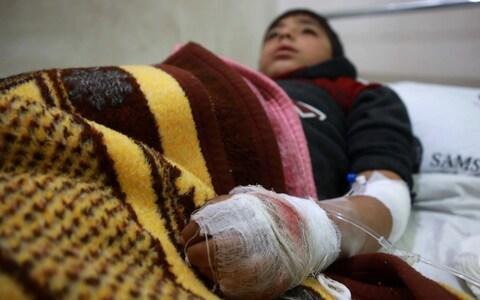An injured boy rests after receiving treatment at Aqrabat hospital following pro-Syrian regime bombardment - Credit: AFP