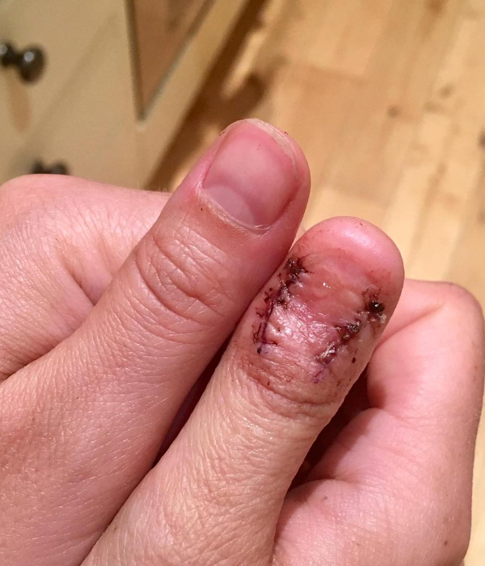 Alana Severs' thumb is now healing. (SWNS)