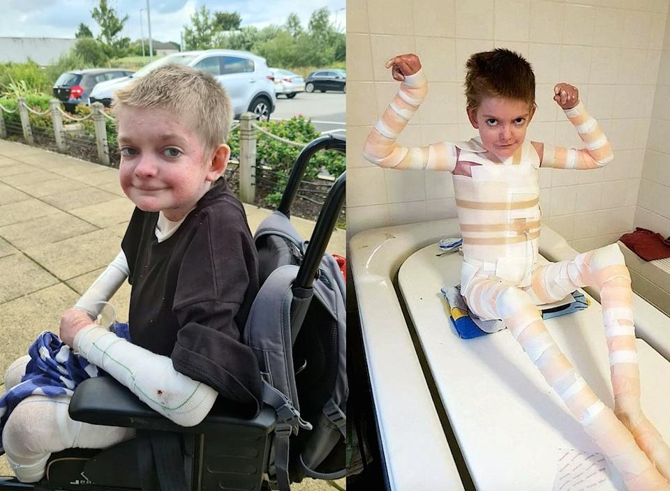 A mum has opened up about her son's rare skin condition. (SWNS)