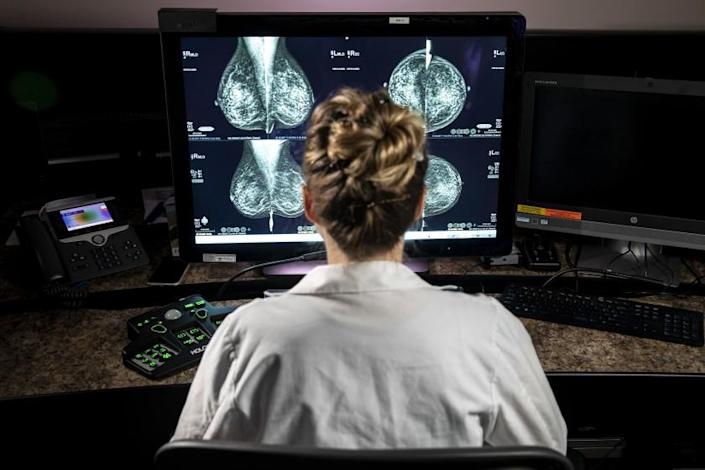 Westwood, CA - May 11: Dr. Hannah Milch, assistant clinical professor, Department of Radiology at the David Geffen School of Medicine at UCLA in Westwood, CA, is photographed reviewing a mammogram Tuesday, May 11, 2021. (Jay L. Clendenin / Los Angeles Times)