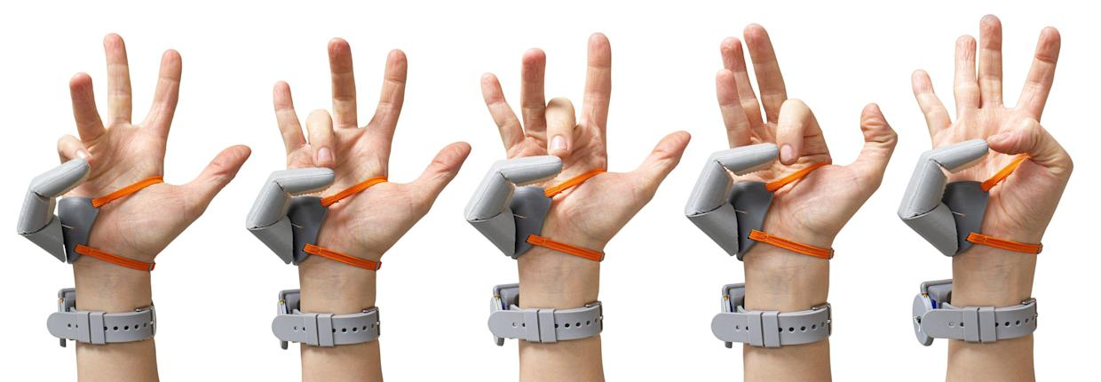 The device is known as the 'Third Thumb'. (SWNS)
