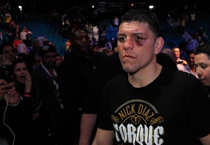 Nick Diaz leaves the arena after losing to Anderson Silva at UFC 183. (Getty)