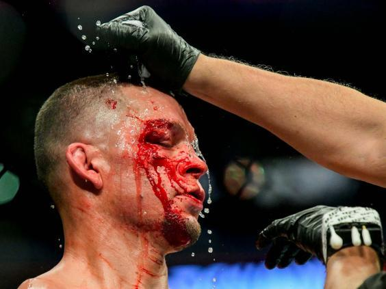 Diaz received cuts above and below the eye against Masvidal (Getty)