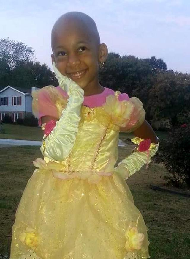Bald and beautiful. Talyah Moe has endured bullying but still manages to smile. (Photo: Courtesy of Shondelle Moe)