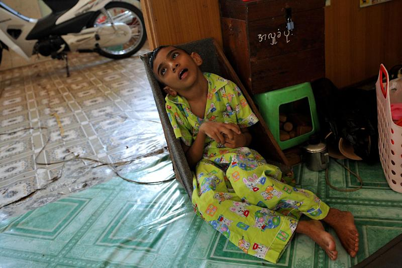 A patient sits in a room at the Mawlamyaing Christian Leprosy Hospital in Mawlamyaing on March 13, 2013 (AFP Photo/Ye Aung Thu)